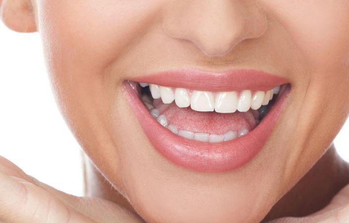 Eclaircissement dentaire
