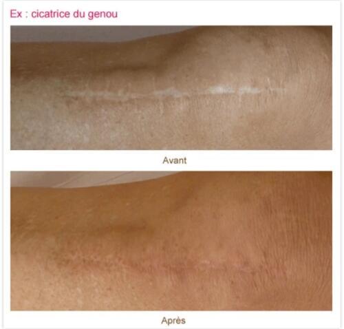 cicatrice3