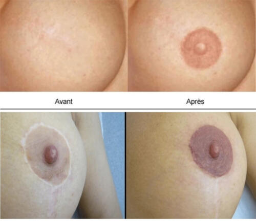 creation-areoles-2