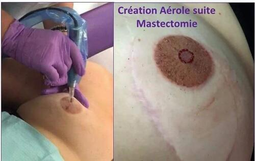creation-areoles