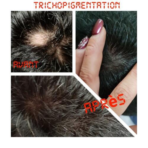 trichopigmentation4