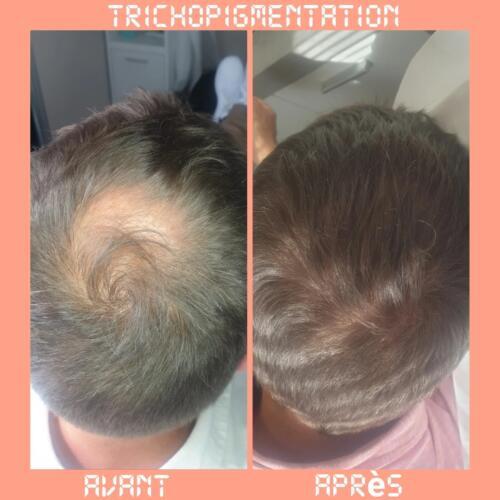 trichopigmentation5