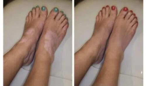 vitiligo3